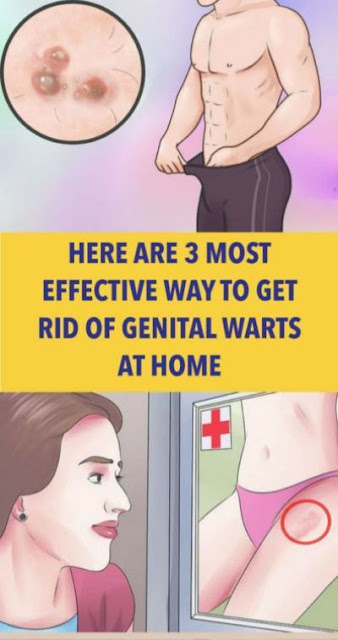 Here Are 3 Most Effective Way To Get Rid Of Genital Warts At Home