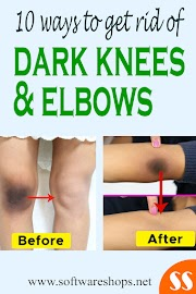 10 ways to get rid of dark knees and elbows naturally