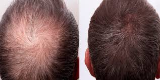 Home made Powerfull Hair Vitalizer for hairloss, hair fall and hair regrowth