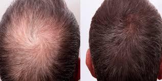 Home made Powerfull Hair Vitalizer for hairloss, hair fall and hair regrowth