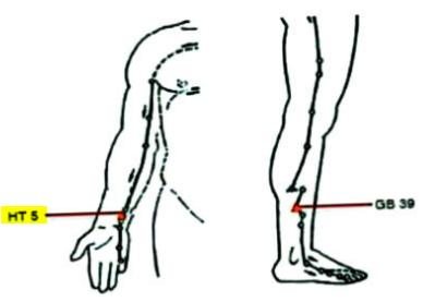 図:失語に効くツボHT5