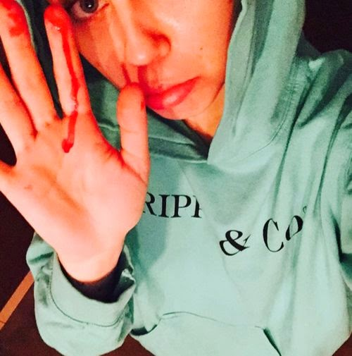 Drug-proof? Miley Cyrus shocks with blood photo | Has she used cocaine?