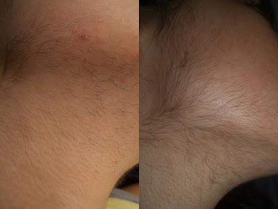 L'excès de poils chez la femme pourrait être dû à ces causes
