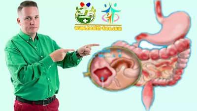داء كرون : الأعراض، الأسباب، تشخيص وطرق العلاج