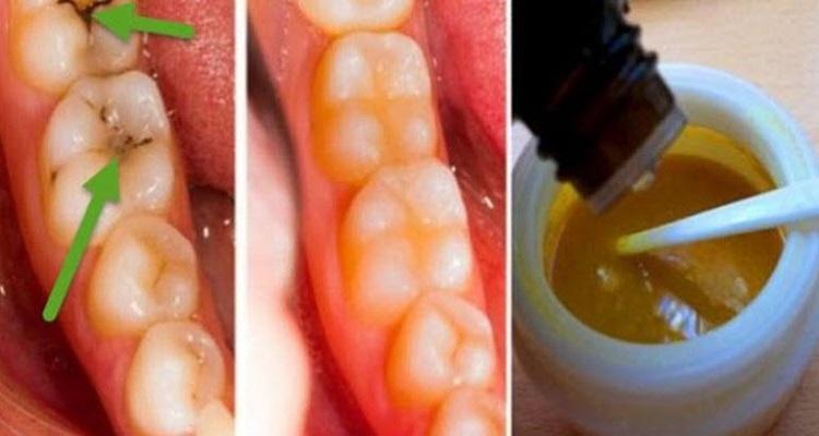 وصفة منزلية للتخلص و للوقاية من تسوس الأسنان وتراكم الجير