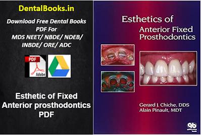 Esthetic of Fixed Anterior Prosthodontics PDF