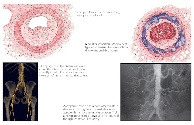 Atherosclerosis in diabetes.