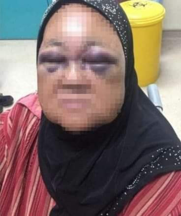Man Slapped And Punched Her 60-Years-old Mother-Inlaw For Not Stopping His 8-Month-Old Daughter From Crying