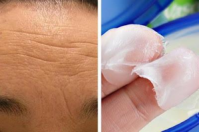 Crèmes naturelles pour réduire les rides du front et du lion