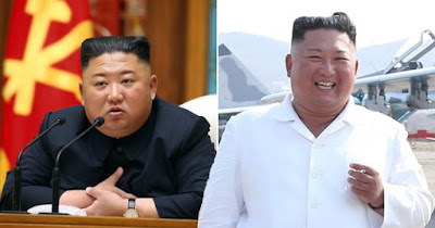 kim jung un death,is kim jong un dead,