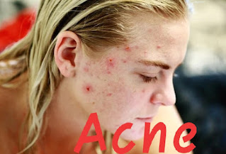 why acne occurs and what are the types and management of acne