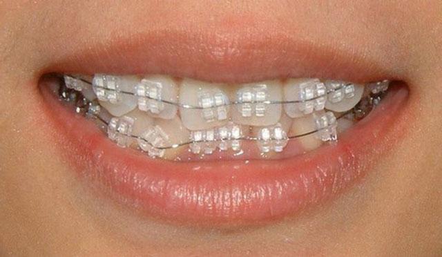 تقويم الأسنان الأبيض