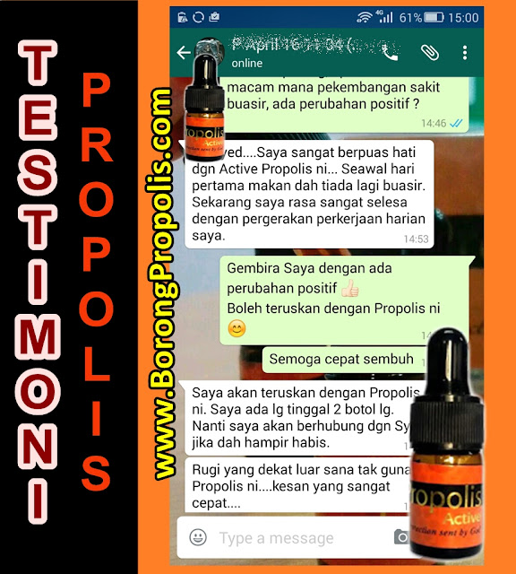 proprietățile propolisului în varicoză)