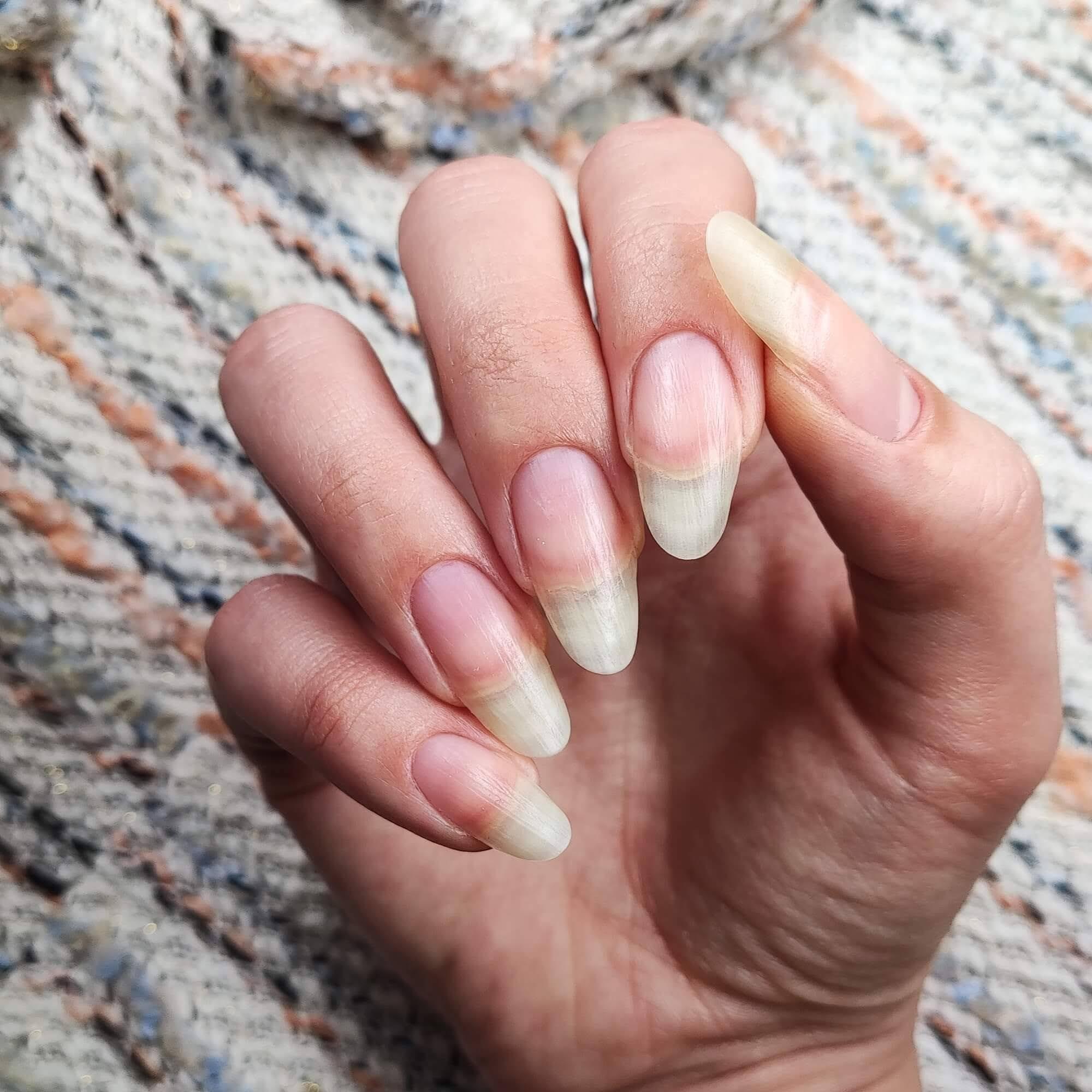 zapuszczone paznokcie