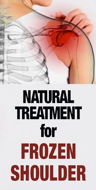 Natural Treatment for Frozen Shoulder