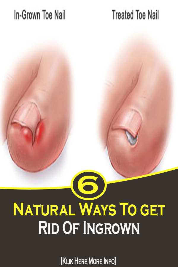 Treat Your Ingrown Toenail With These 6 Natural & Homemade Remedies
