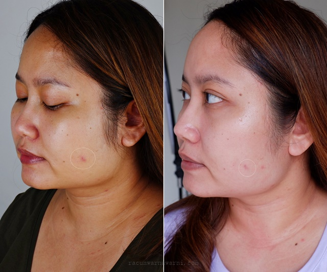 Before dan After Lacoco Dark Spot Essence dan lacoco daily uv counter spf 50 PA++