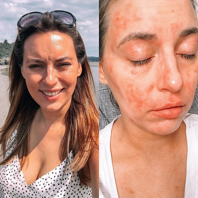 Ce sont les symptômes et les traitements de l'affection allergique de la peau très sèche
