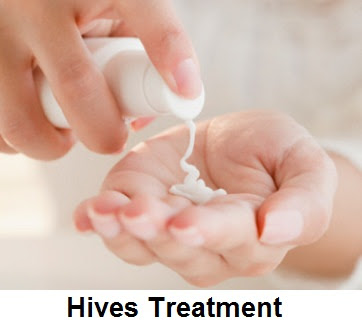 It can then pass into thickened pale spots Hives Causes, Symptoms, Diagnosis And Treatment