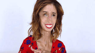 Lizzie Velasquez world's ugliest woman