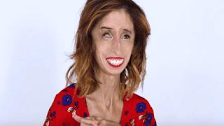 Lizzie Velasquez world's ugliest woman