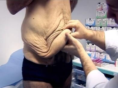 Cirugia bariatrica perdida de peso
