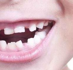 Merawat Kesehatan Bayi Dimulai dari Gigi Susu