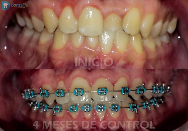 brackets dentista veracruz