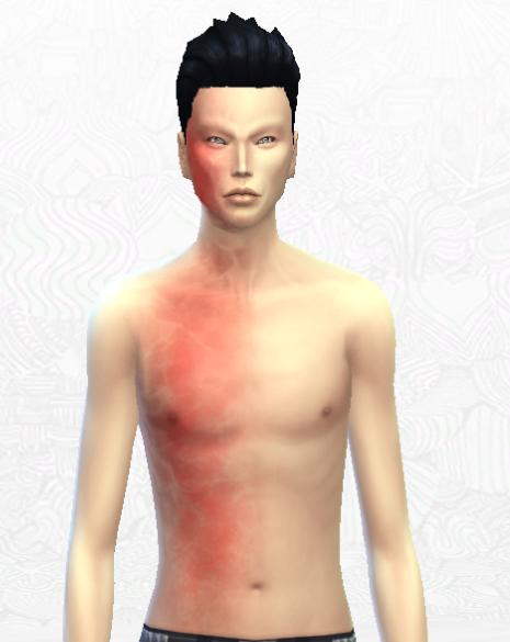 Burn Scar Sims 4 Related Keywords & Suggestions - Burn Scar