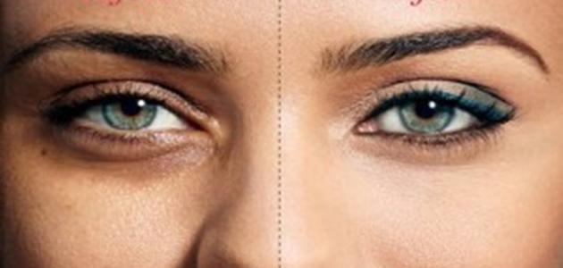 طرق التخلص من الهالات السوداء حول العينين بالوصفات الطبيعيه