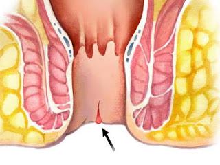 علاج الشرخ بالفازلين Treatment anal fissure  Vaseline