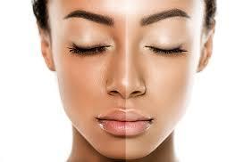the best solution of Skin Whitening forever