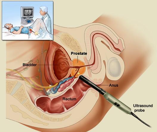 Pemeriksaan Trans Rectal Ultrasound Scanning