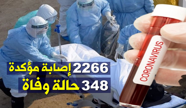 وزارة الصحة : 2266 إصابة مؤكدة و 348 حالة وفاة
