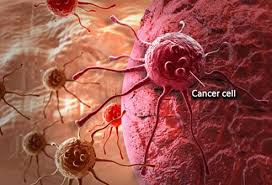 Approximately 20 per cent of all deaths in America are due to cancer.