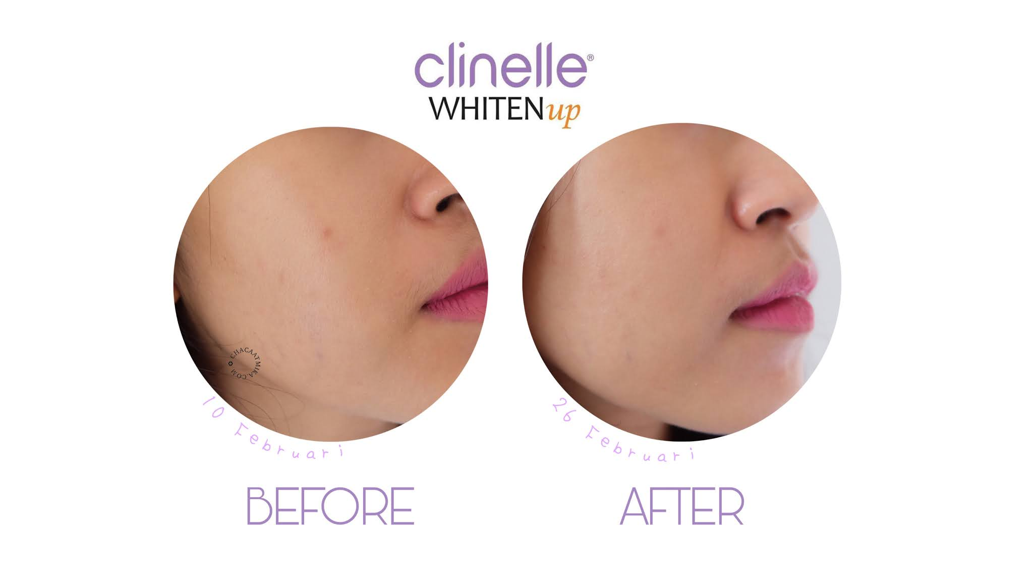 Before After Penggunaan Skincare Clinelle