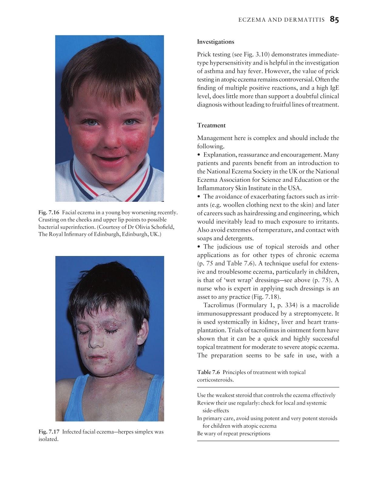 Diseases Of The Male Groin: Medicine By Sfakianakis G. Alexandros: Skin Disease In