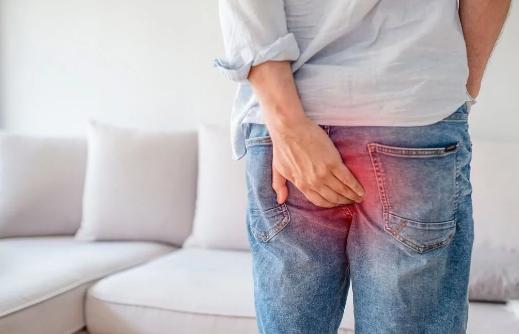 How to treat Hemorrhoid