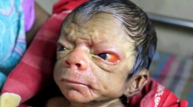 Sangat Malang Baru Dilahirkan Keadaan Bayi Ini Seperti Kakek Berumur 90 Tahun