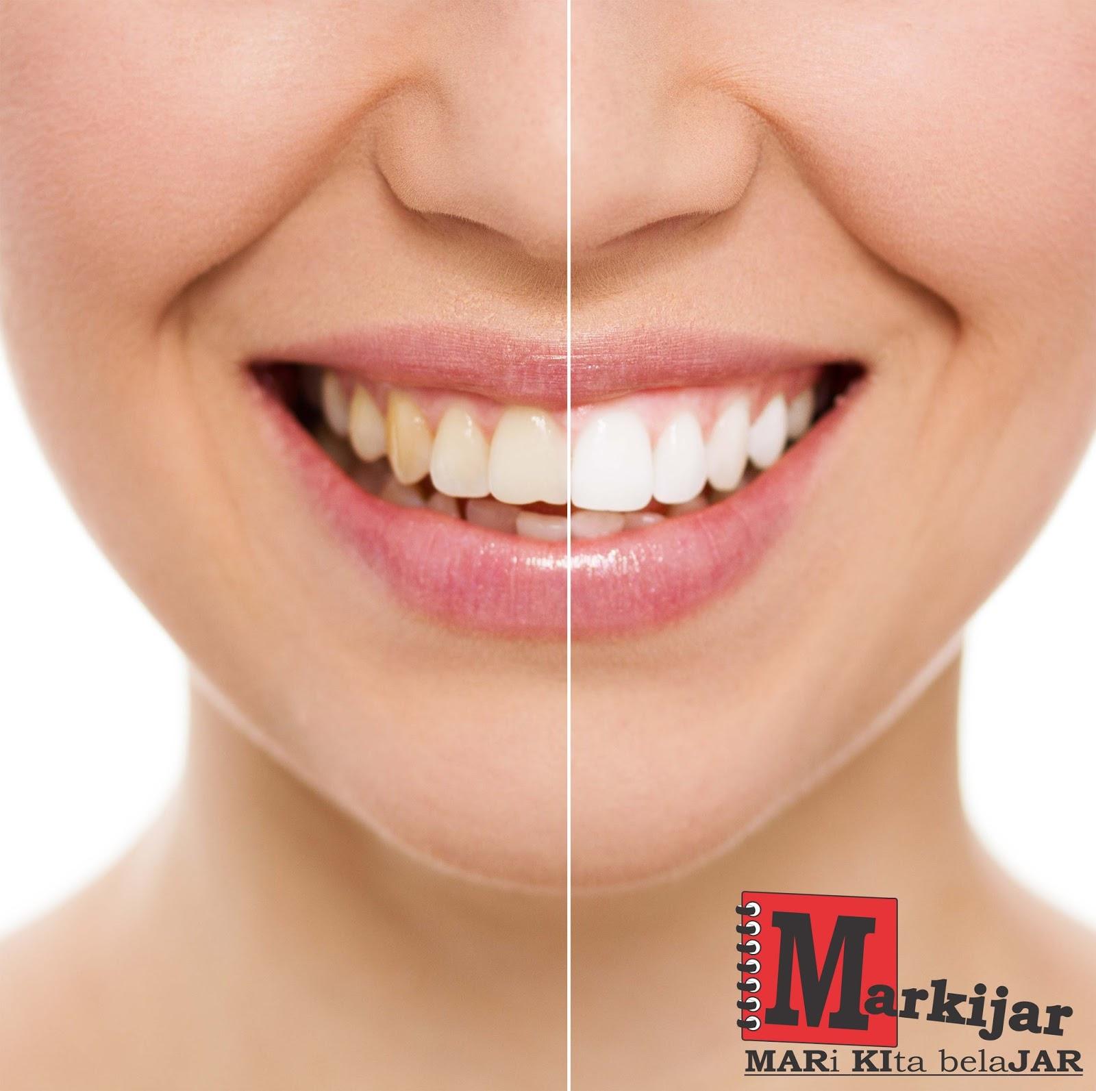12 Cara Tercepat Dan Ampuh Memutihkan Gigi Kuning Secara Alami
