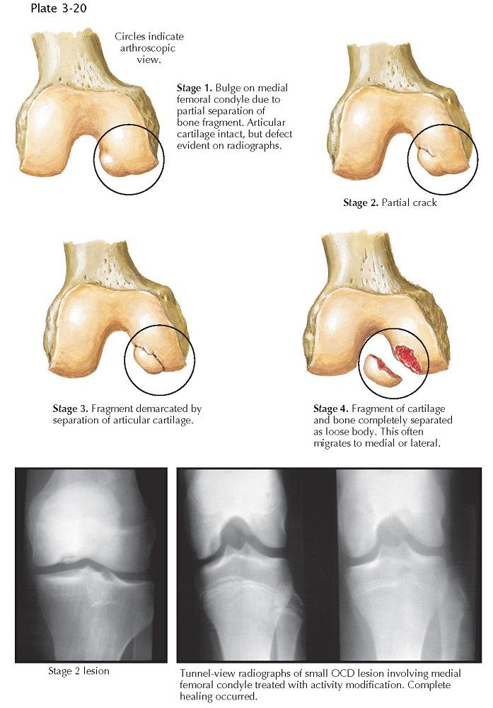 PROGRESSION OF OSTEOCHONDRITIS DISSECANS
