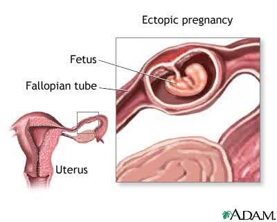 Kehamilan Ektopik Nunung Nurlaela