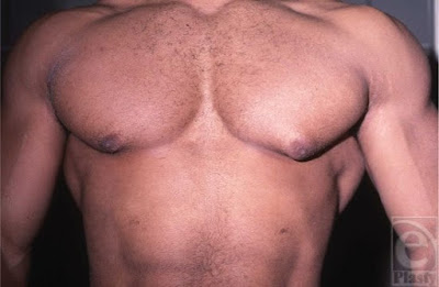 Gynecomastia in a muscular male, likely AAS related.