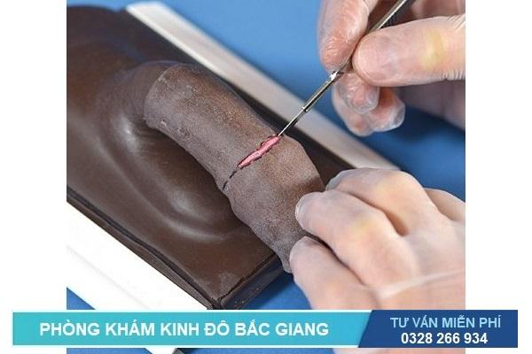 Cắt bao quy đầu ở Bắc Giang