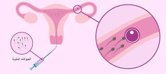 علاج العقم عن طريق التلقيح داخل الرحم (IUI)