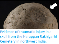 https://sciencythoughts.blogspot.com/2019/05/evidence-of-traumatic-injury-in-skull.html
