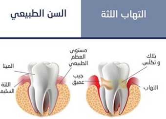 ارخص عيادة اسنان في الشارقة