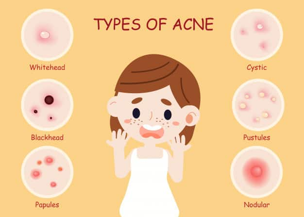 treat acne