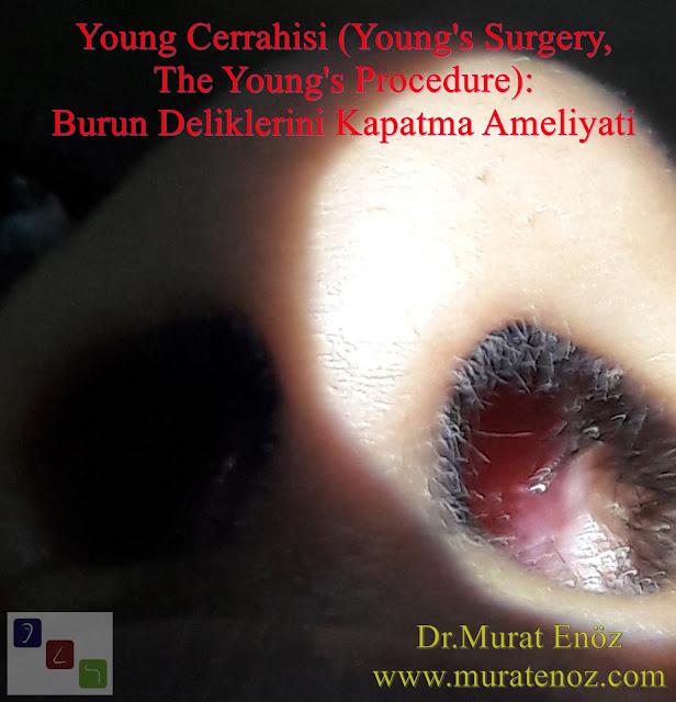 Young Cerrahisi, Young  Operasyonu, Young Ameliyatı, Young Prosedürü, Young's Operation, Young's Surgery, The Young's Procedure, Boş Burun Sendromu, hatalı burun eti ameliyatı, Modifiye Young Cerrahisi, Modifiye Young  Operasyonu, Atrofik Rinit Tedavisi