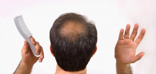 Coping With Hair Loss solutions for hair loss 2020